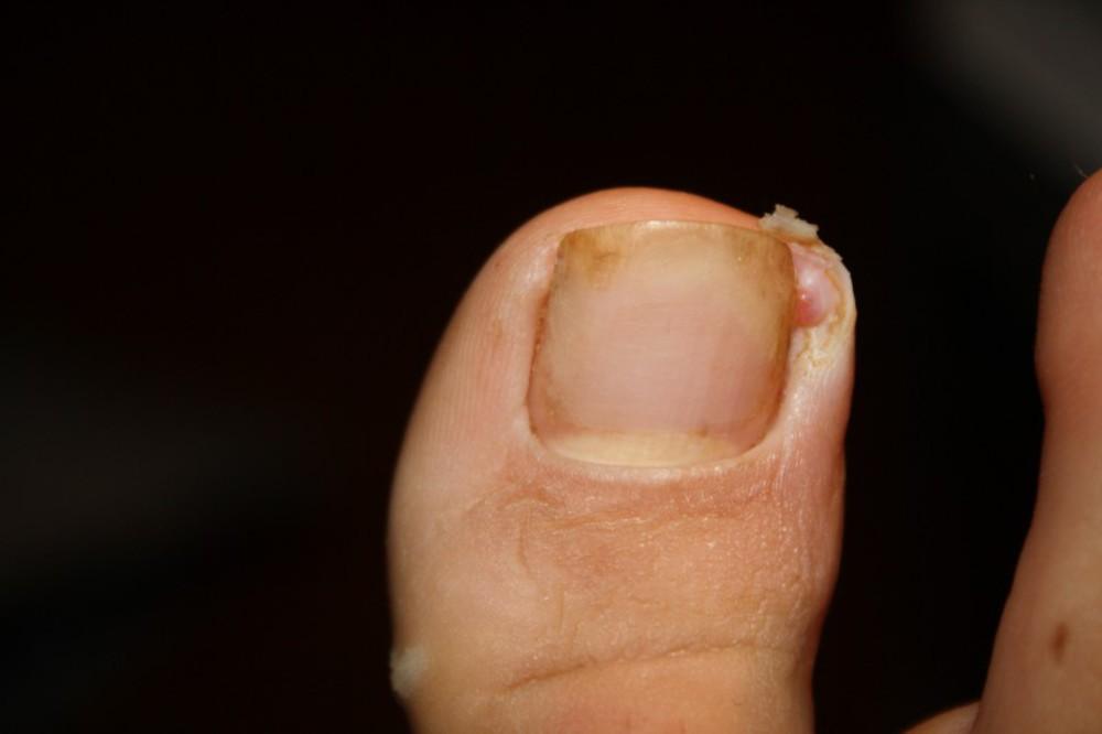 заусенец на пальце ноги