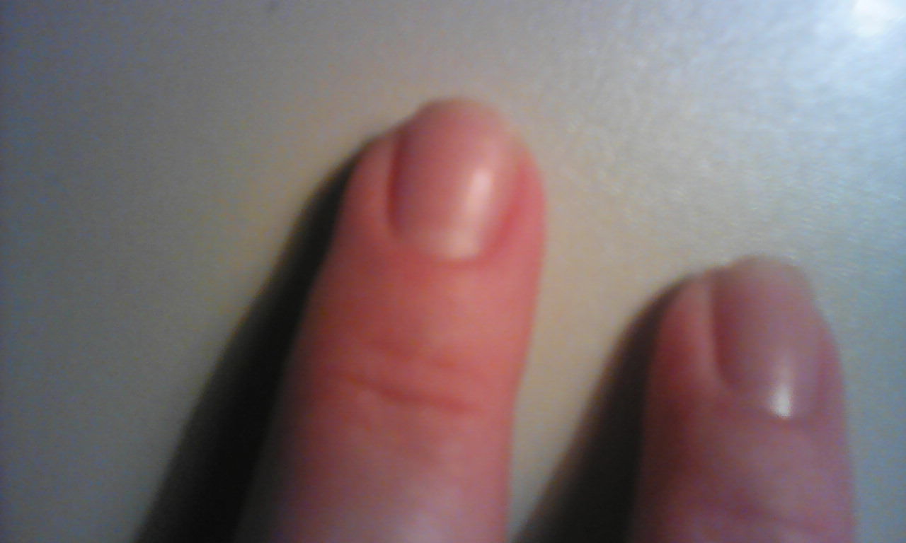 Фото трещин на ногте