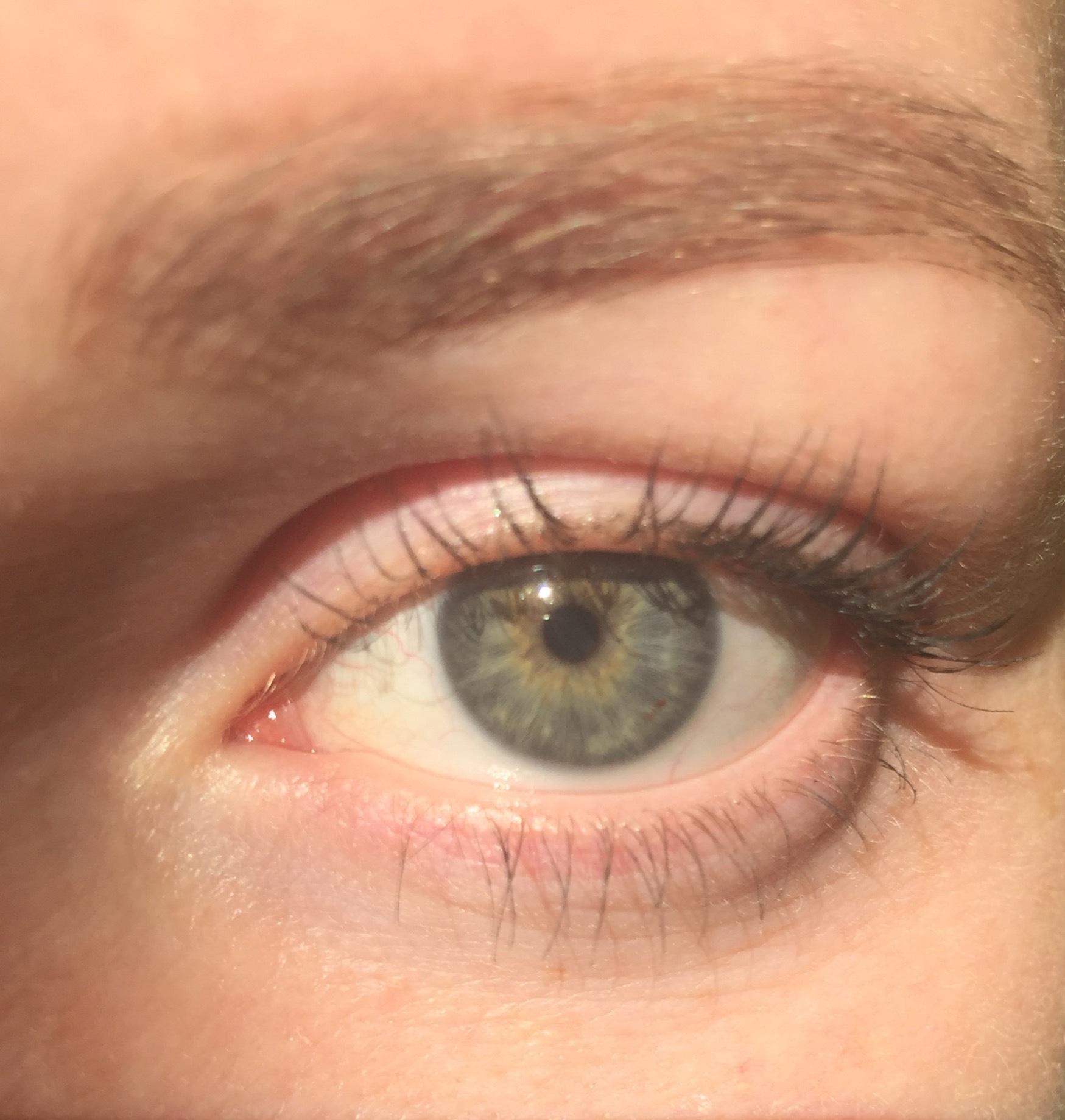 Цвет глаз вкрапления
