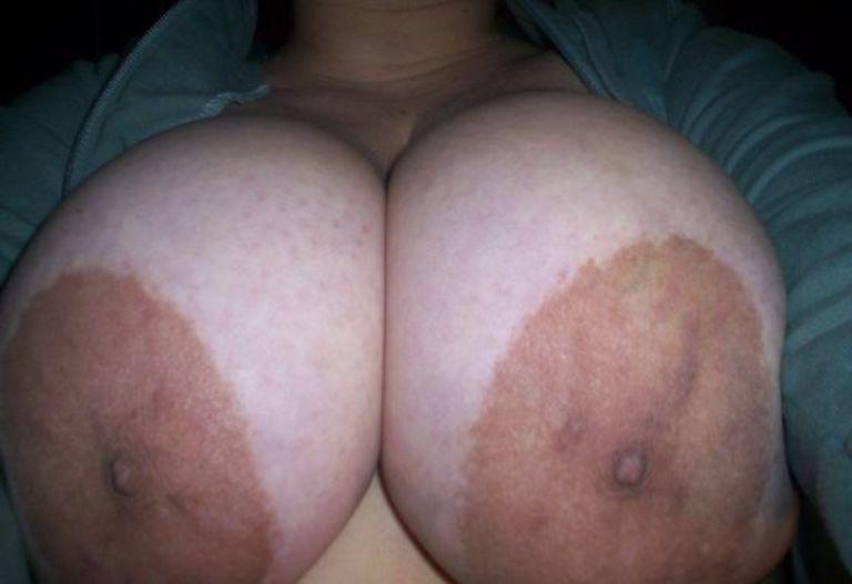 пухлые коричневые соски на грудях почему тебя одно